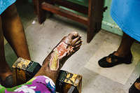 A foot care is provided to a diabetic patient at the Colonial War Memorial hospital