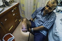 A routine check-up for a man living with diabetes following foot amputation, Wainibokasi Hospital